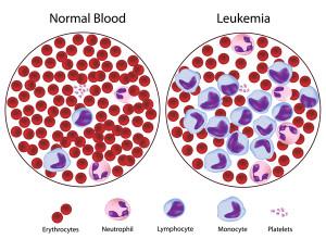 normalvleukemia